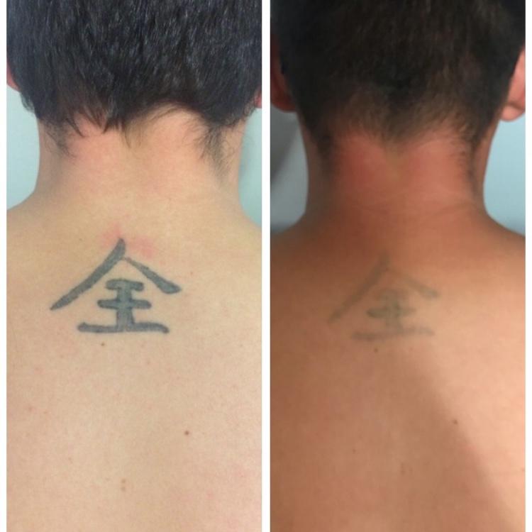 Tetoválás eltávolítás